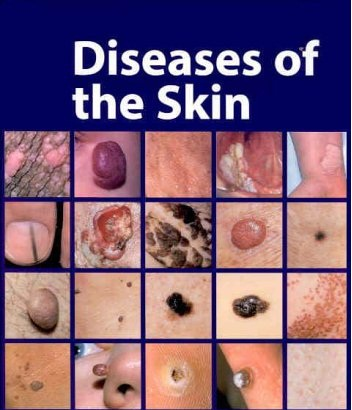 Psoriasis, Vitiligo, Eczema, Acne and other skin challenges 3