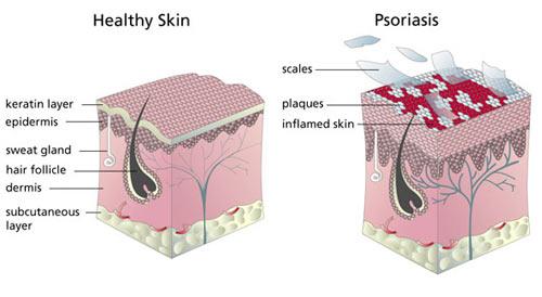 La psoriasis de la parte pilosa de la cabeza de la hierba