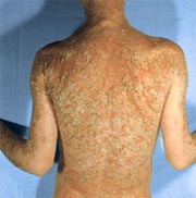 psoriasis Cure For Psoriasis In Homeopathy