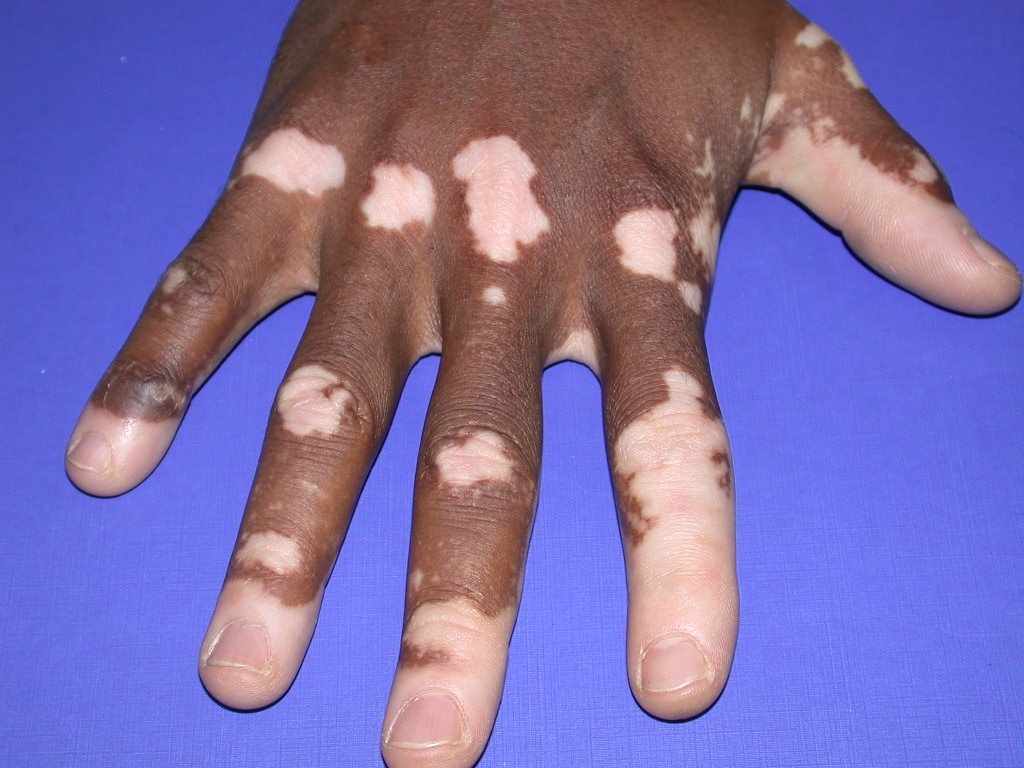 What Does Vitiligo Look Like? Pictures - Healthline
