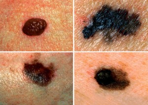 Cancerous-moles