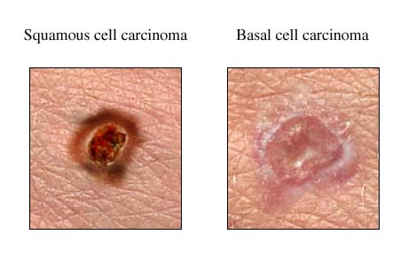 skin cancer and coffee – reducing the risk of basal cell carcinoma, Human Body