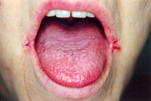 cracks at the corners of the mouth angular cheilitis