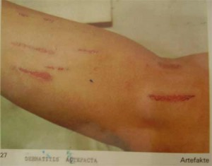dermatitis artifacta