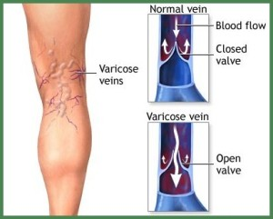 varicose veins and spider veins causes