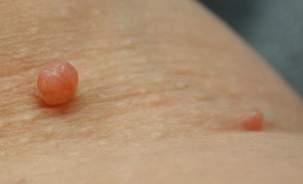 # Diabetes And Skin Problems - Pre Diabetes Ketosis